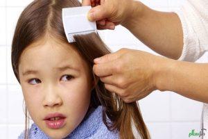 هشدار به والدین: مراقب شپش در مهدکودکها باشید + توصیه و درمان